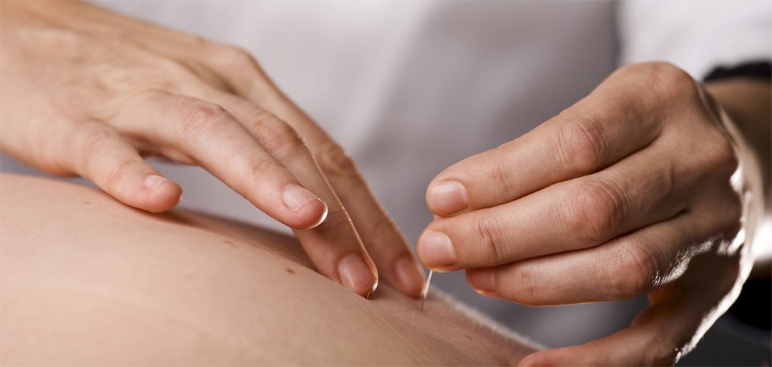 depression during pregnancy with acupuncture