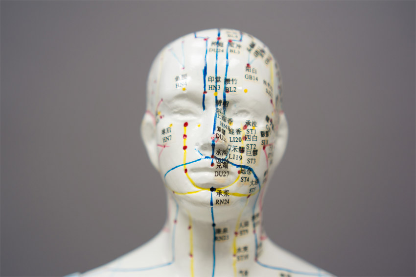 Treating sinus problems with acupuncture